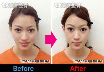 あごの歪みが解消されて立体的な小顔へ