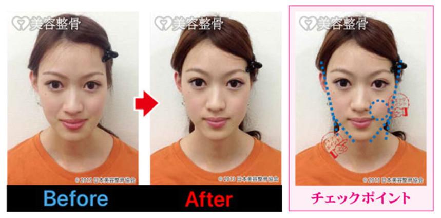 上顎、下顎のバランスも良くなり小顔に