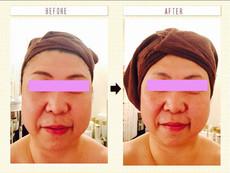 小顔矯正 炭酸プラセルコース
