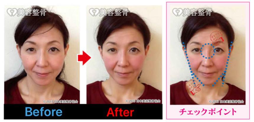 顎の歪み、立体的な鼻筋に変身