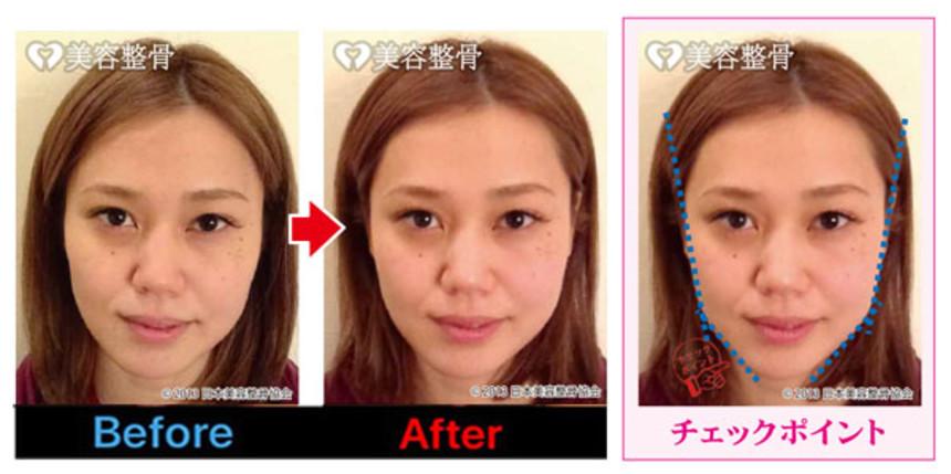 顎の歪みも解消