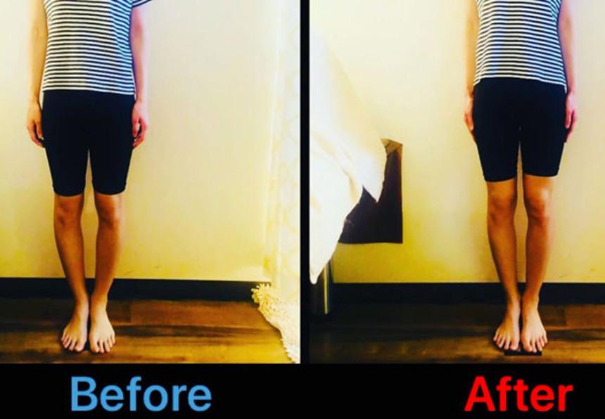 O脚改善、予防