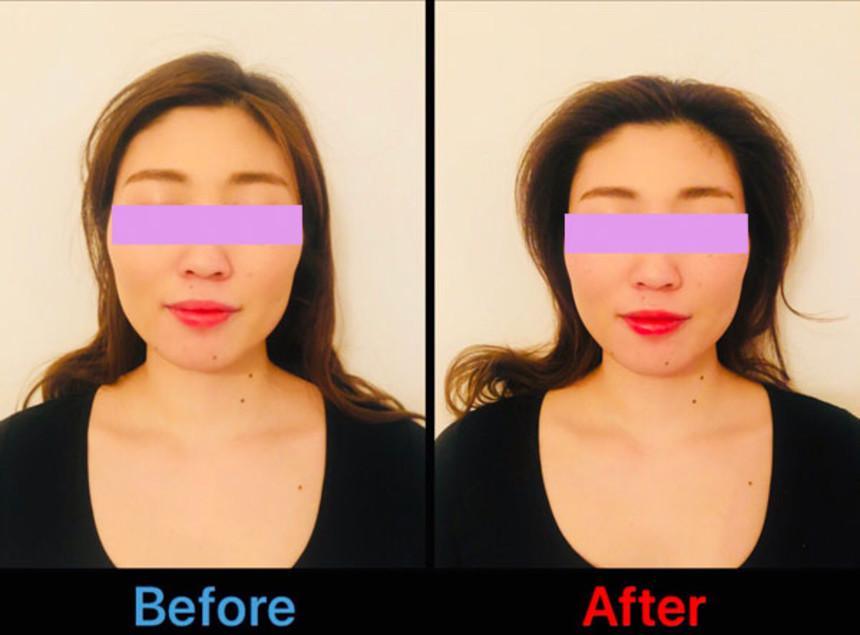 顔の形に変化